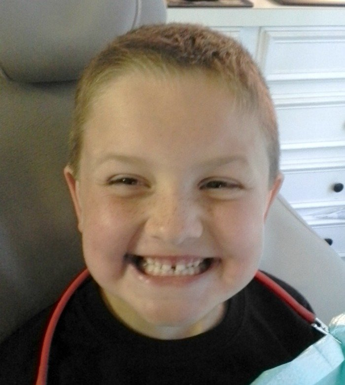 clean teeth after his first dentist appointment