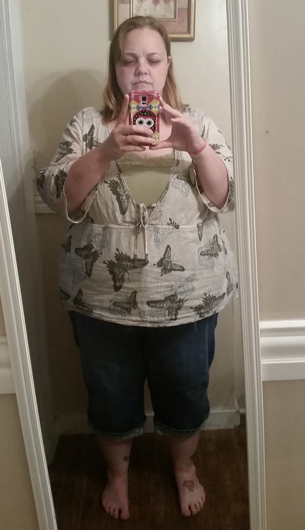 6 months post op outfit